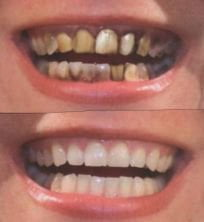 Complete Dentures before and After